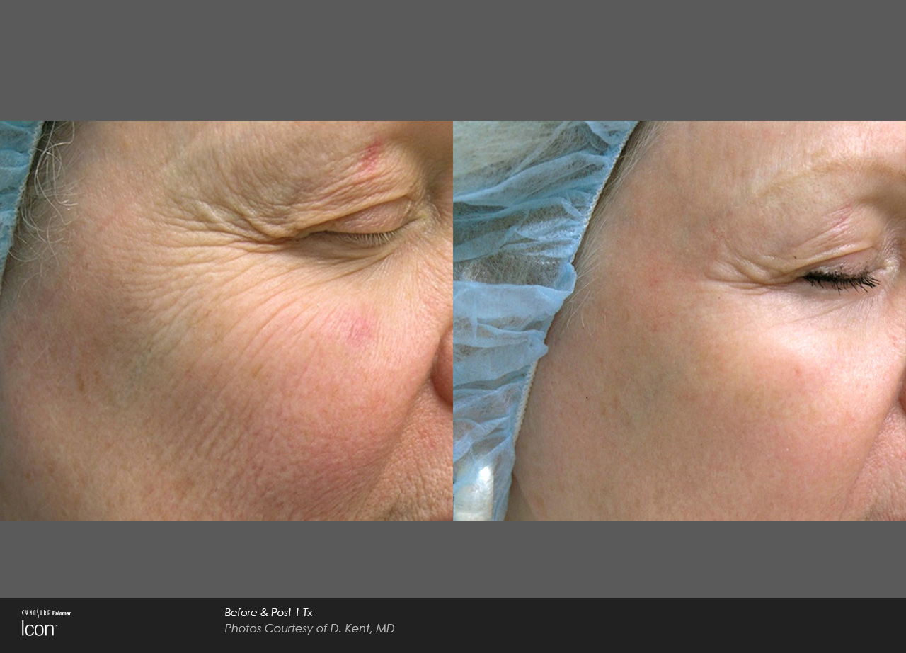 Wrinkle Reduction in Honolulu, Dr. Aya Sultan Laser Wrinkle Reduction Treatment. Appointments available