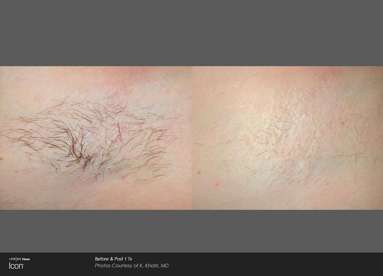 Honu Womens Health Honolulu Aesthetics Dr. Aya Sultan Laser Hair Removal