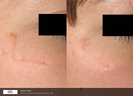 Scar Revision Honu Women's Health in Downtown Honolulu, Dr Sultan Laser Scar Revision